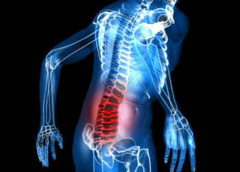 Column#6 整形外科では解決しない筋膜性腰痛