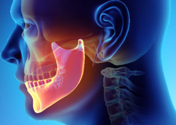 Column#16 顎関節症