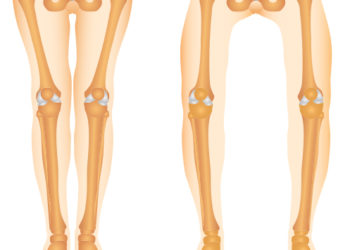 Column#17 O脚と変形性膝関節症