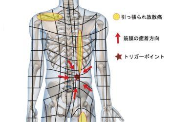 筋膜リリースという治療法